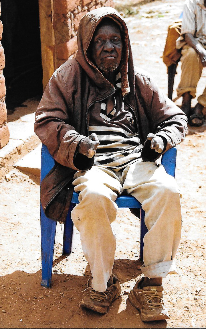 Hilfswerk Bassotu - Lepra